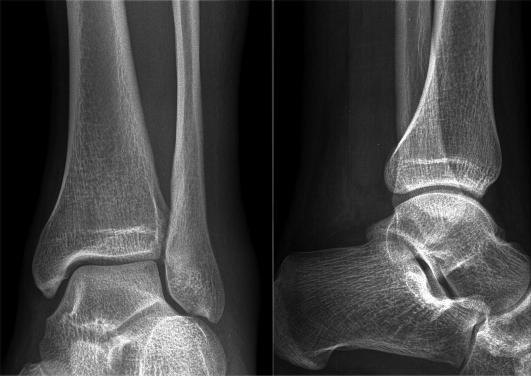Рентгеновские снимки голеностопного сустава фото корка арбуза для суставов